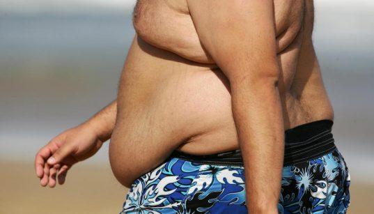 elhízás - elhízott ember strandon