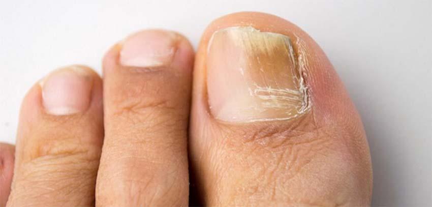 Futók bőrgyógyászat