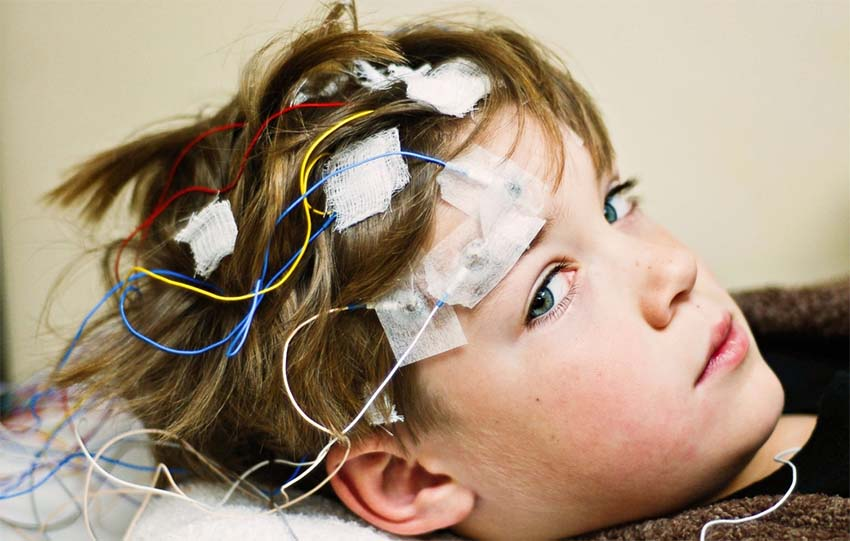 Epilepszia sportorvos