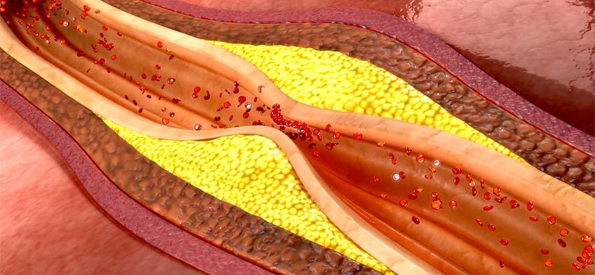vérzsír testmozgás sportorvos