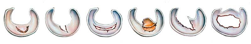 meniscus szakadások típusai