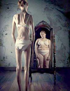 testképzavar - anorexia nervosa