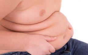 Elhízás - elhízott férfi