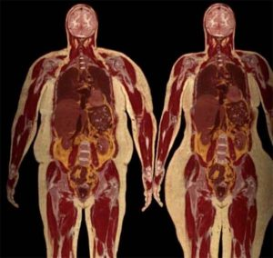 Elhízás: almatípus és körtetípus