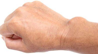 ganglion kézen