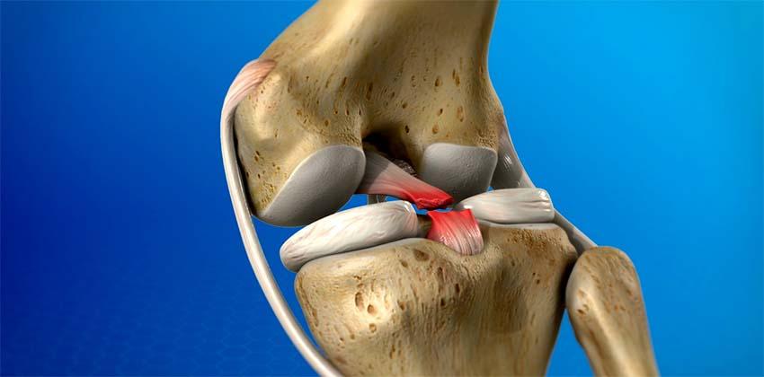 térdízületi ödéma kezelés mi az artrózis, mint a kezelés