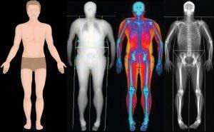 Terheléses vizsgálat - testösszetétel vizsgálat